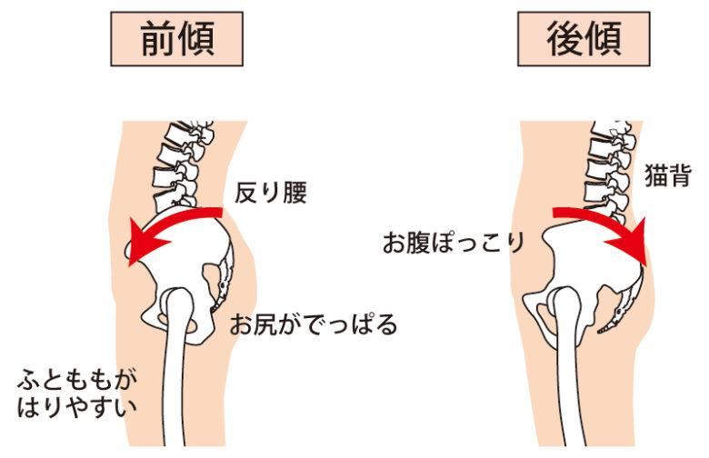 骨盤の前傾後傾のイラスト