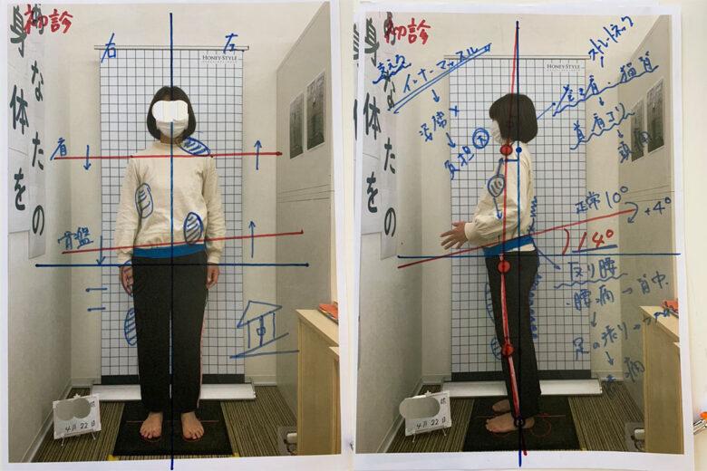 藤うさぎ院骨盤矯正の初診の刺青写真